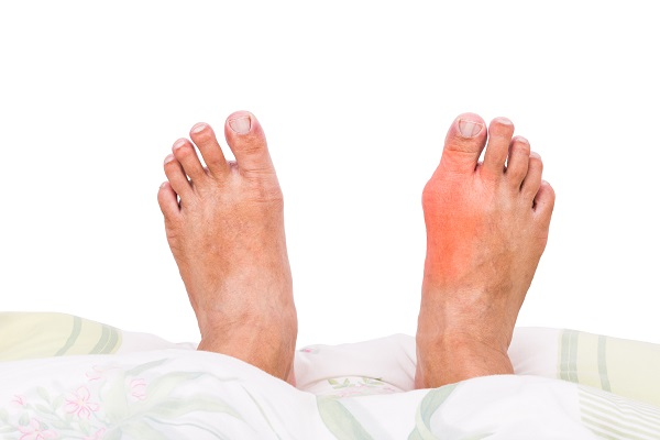foot affected by gout